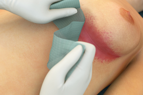 Two illustrated hands showing how to apply Sorbact ribbon gauze on an rash.